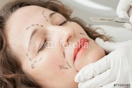 Interventions du visage