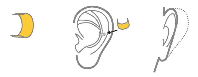 earfold (1)